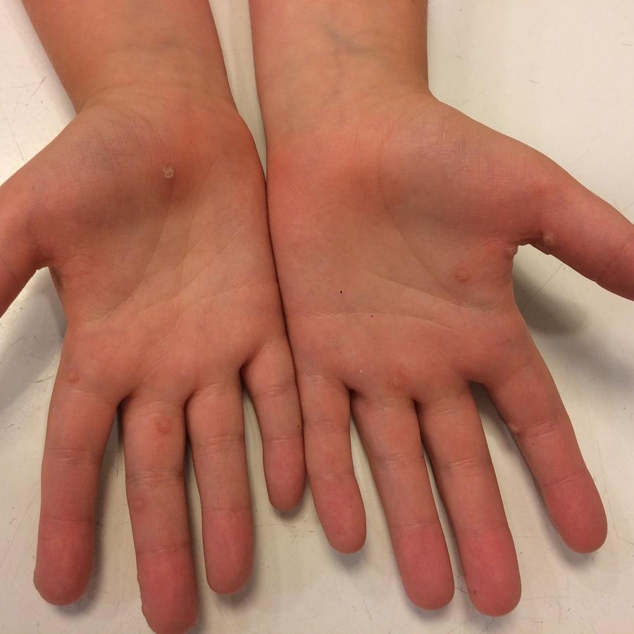 Kéz- és lábszemölcsök | HeltiQ WartFreezer