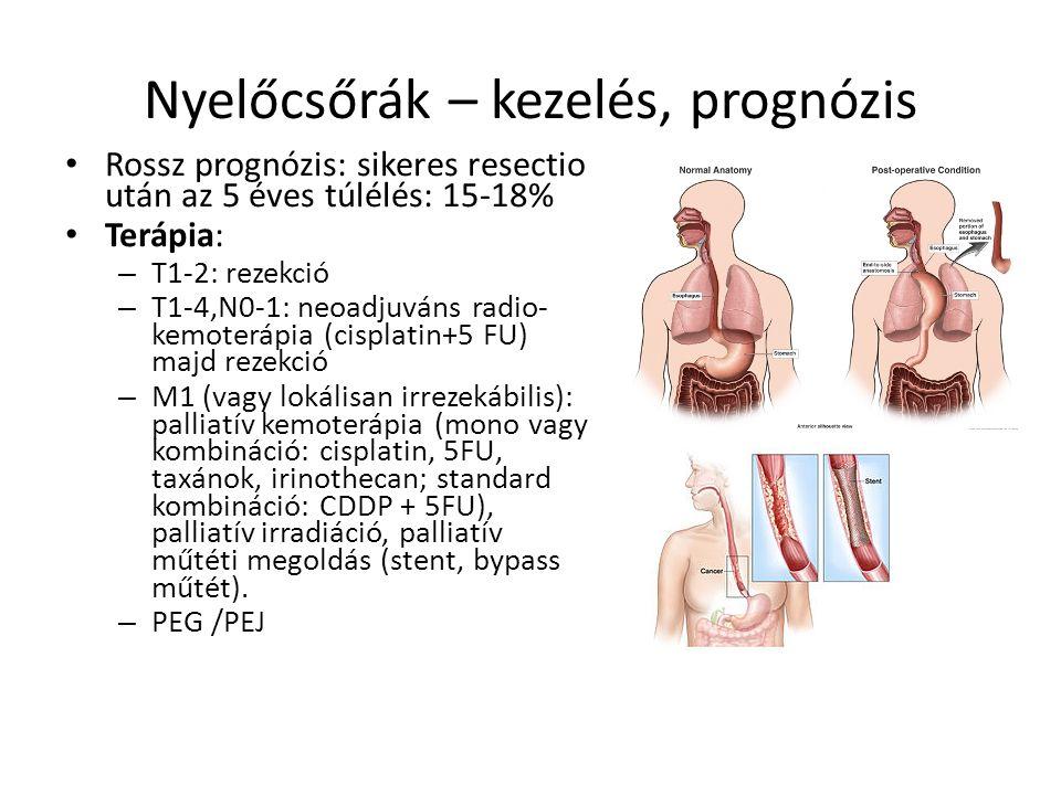 endokrin rák prognózisa genitális hpv és rák