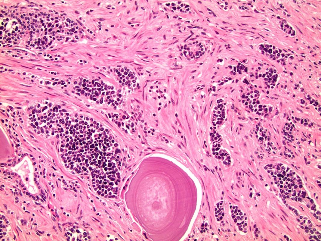 enterobius vermicularis átvitel útján