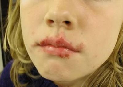 papillomavírusos bőrkezelés