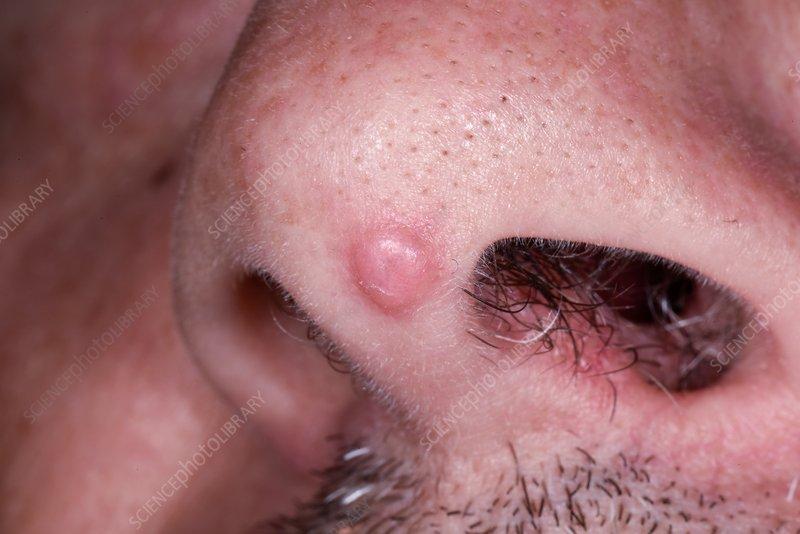 kenőcsök papilloma vélemények ellen szemölcsök kezelése bőrgyógyász által