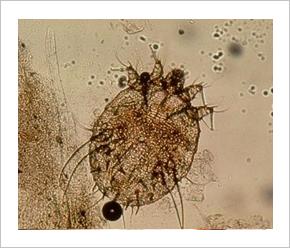 paraziták az emberi agyban, tünetek és kezelés