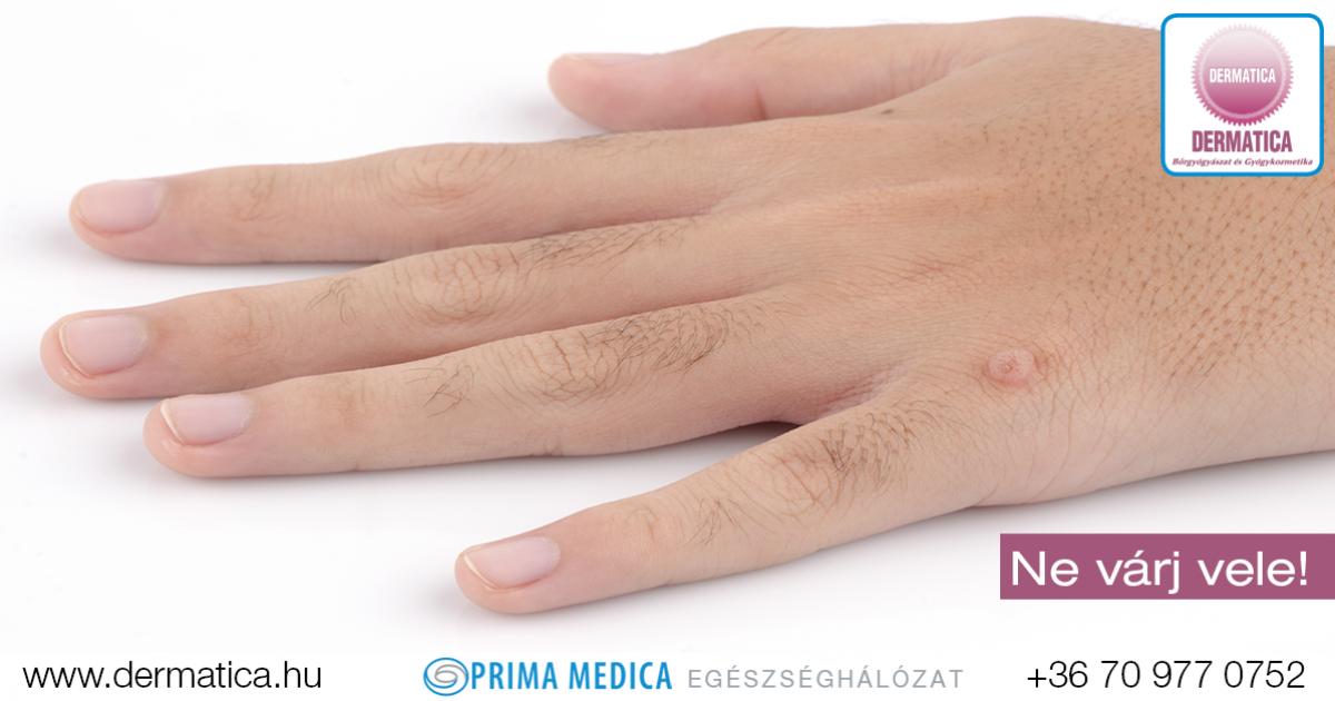 emberi papillomavírus szemölcsök kezét pinworm betegség neve