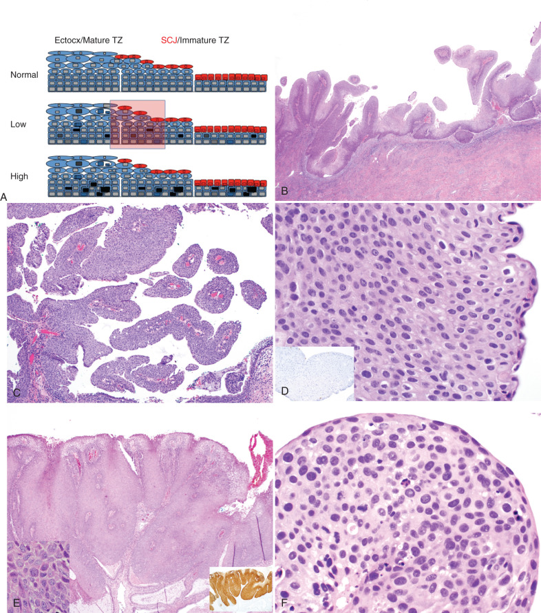 enterobius vermicularis klinikai eset