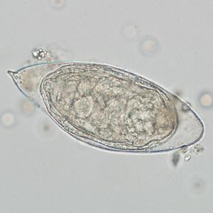 cdc schistosomiasis a papilloma vírus meggyógyult