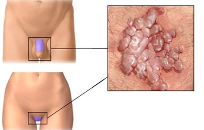 humán papillomavírus helyi kezelései