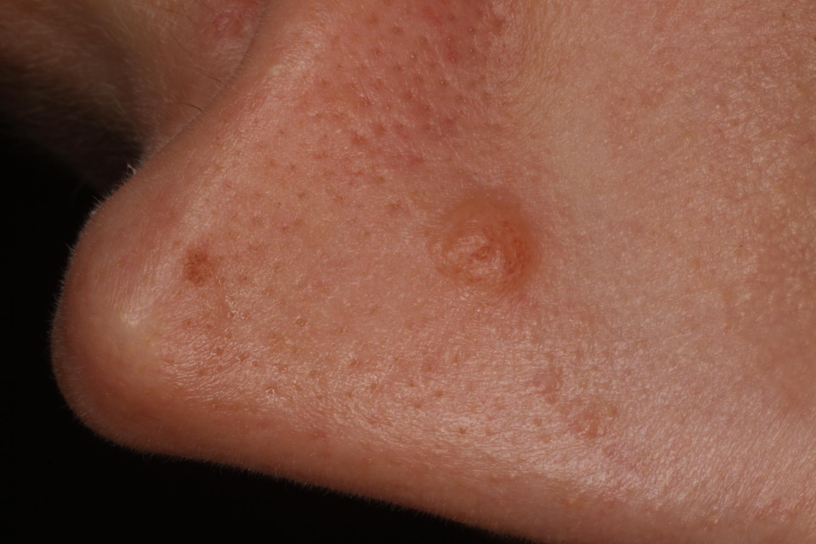 magas kockázatú papilloma genitális szemölcsök végbélnyílás