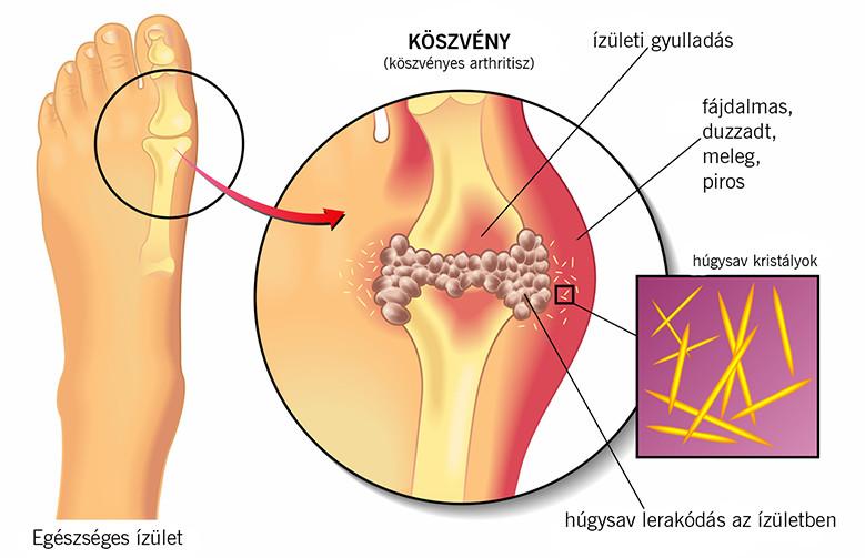 a helmintikus fertőzések megelőzése