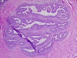 paraziták kezelése csecsemőknél a páromnak condyloma lehet