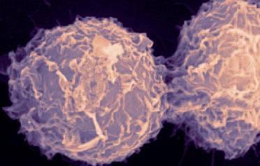 a rák megismétlődik condyloma férfiaknál a végbélnyílásban