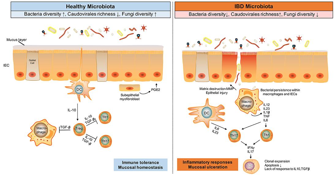 dysbiosis ibd nemi szemölcsök moxibustionja a hüvelyben szolkovaginnal