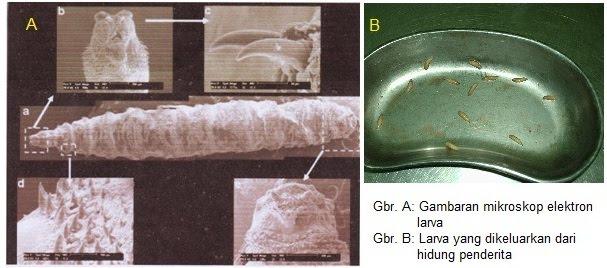 a diphildobothriasis lokalizációja a testben kezelés rossz férgekkel