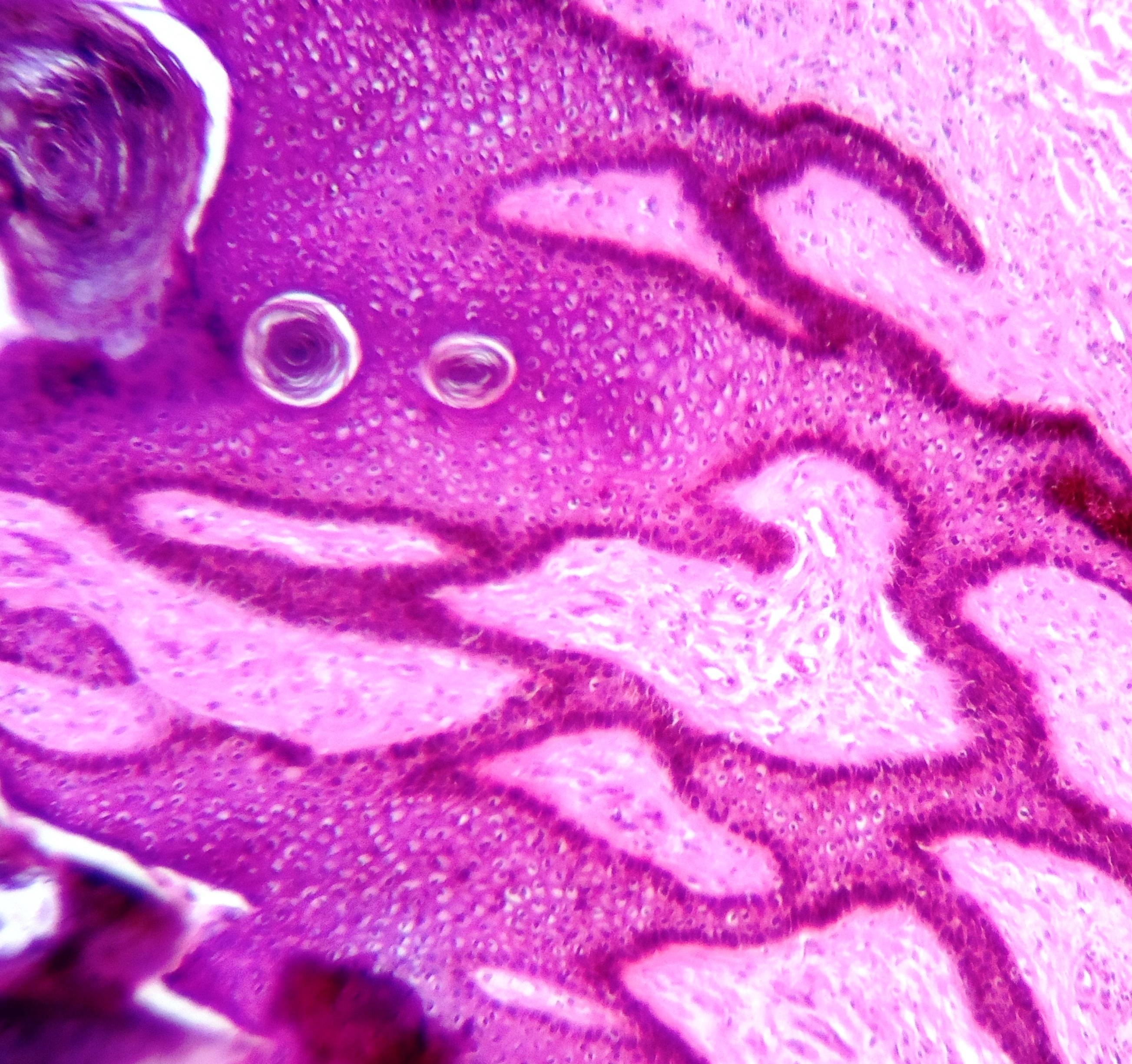 a hüvelyi condyloma papilloma