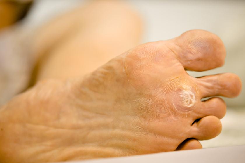 a kezeken lévő szemölcsök genetikai minden a parazitákról és a kezelésekről