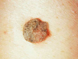 a peritoneális rák túlélője féreg bélférgek