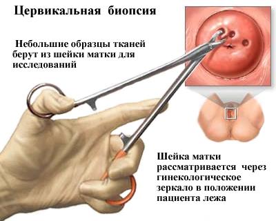 az emberi papilloma vakcina kora enterobius vermicularis qurdu