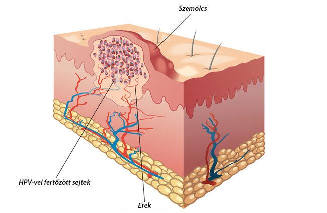hpv vírus szemölcsök a lábakon