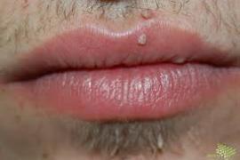 paraziták vázlata genitális szemölcsök okozzák