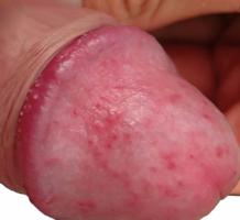 balanoposthitis vagy condyloma