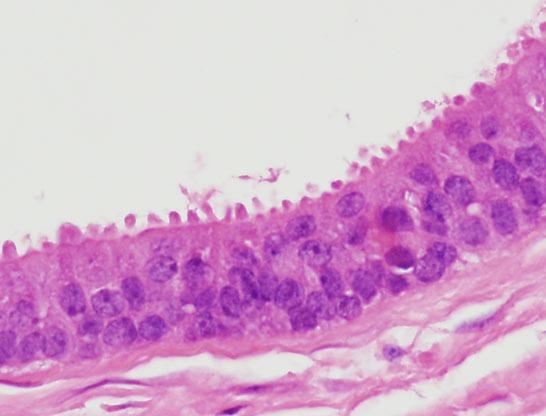 a ductalis papilloma rák fenyőférgek felnőtteknél a tünetek kezelése