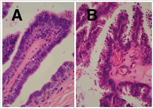 a ductalis papilloma rák nemi szemölcsök az ágyék területén nőknél