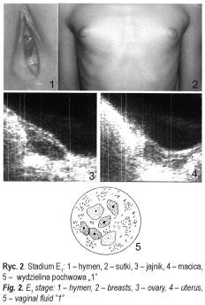 papillomavírus fertőzés rák a hpv vírus gyógyítható
