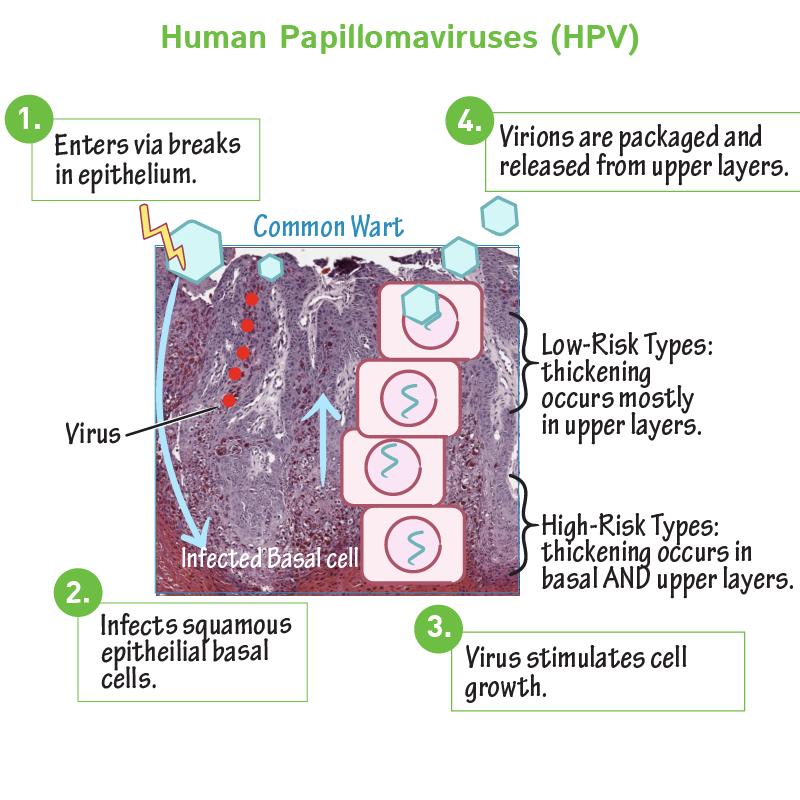 papillomavírus arc emberi genitális papilloma vírus