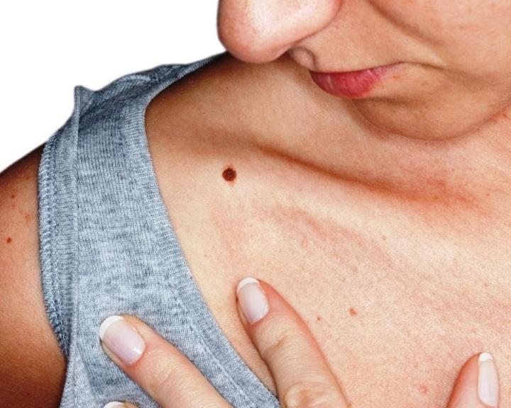 rák torok hpv tünetek schistosomiasis slideshare