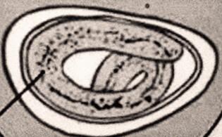 Felnőttek enterobiasis gyógyszere. Melyek a felnőttek pinwormjai?