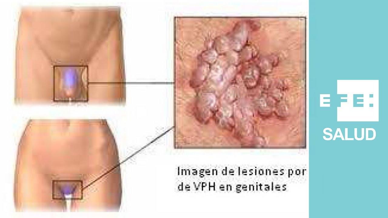enterobius vermicularis népnév hogyan kell kezelni a belső szemölcsöket