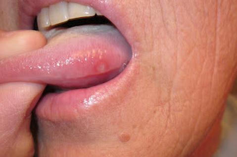 hpv na jazyku