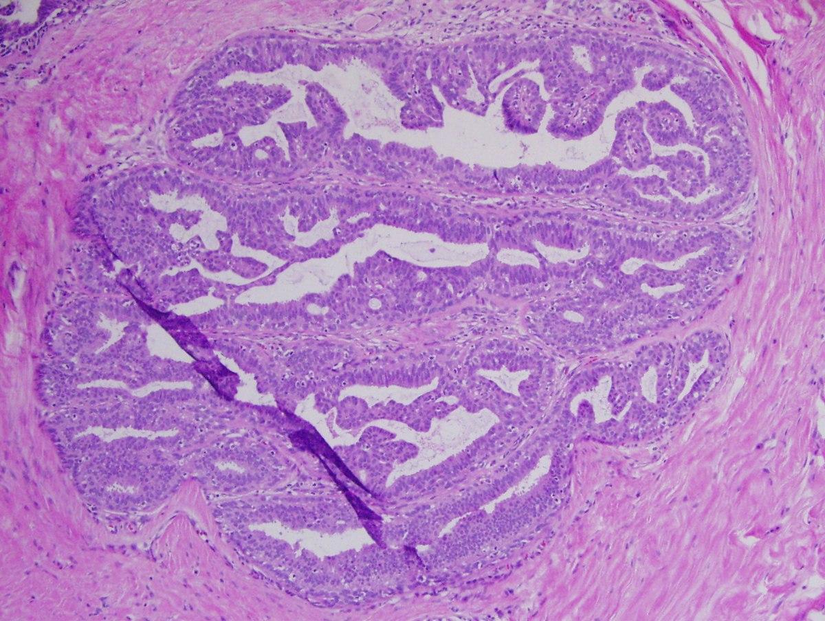 condyloma condylina hpv torok- és nyaki rák