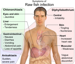 A diphyllobothriasis tünetei, Diphyllobothriasis ( hal galandféreg fertőzés)