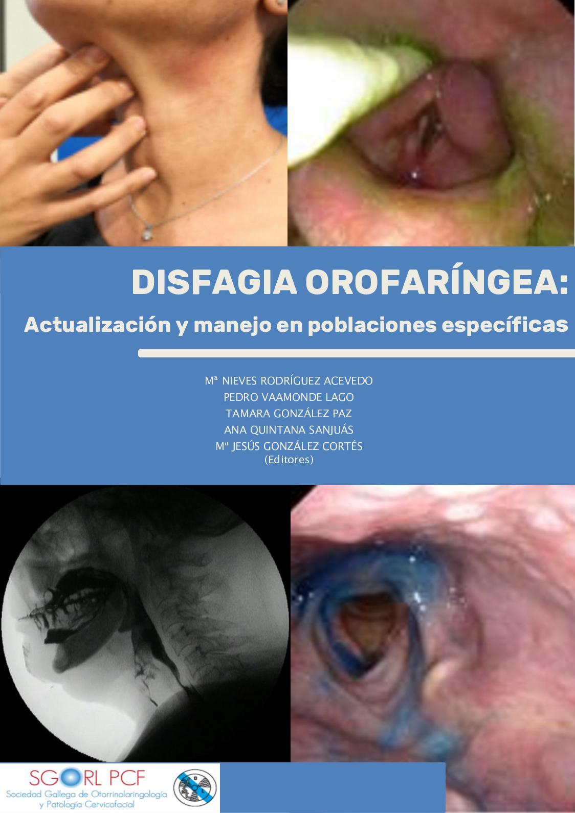 parazita kókusz kód tünetek a férgek kezelésével