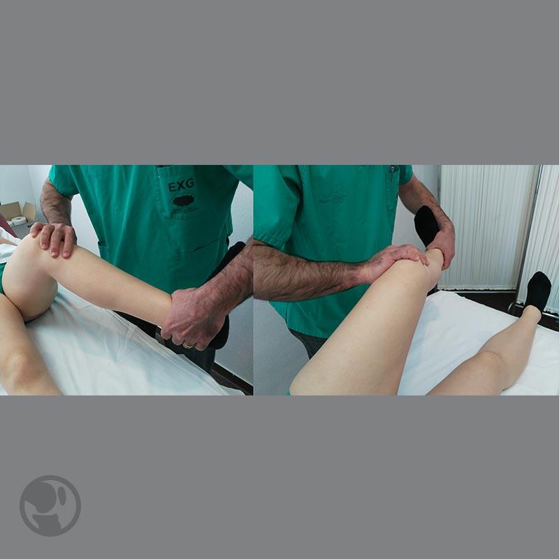 papillómák a test kezelésén