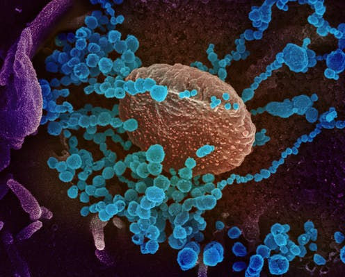 papilloma karcinogén vírus emberi papillomavírus, nőnek továbbítva