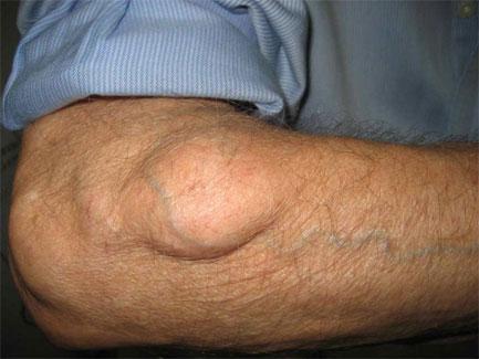 papillomavírusos bőrfertőzés