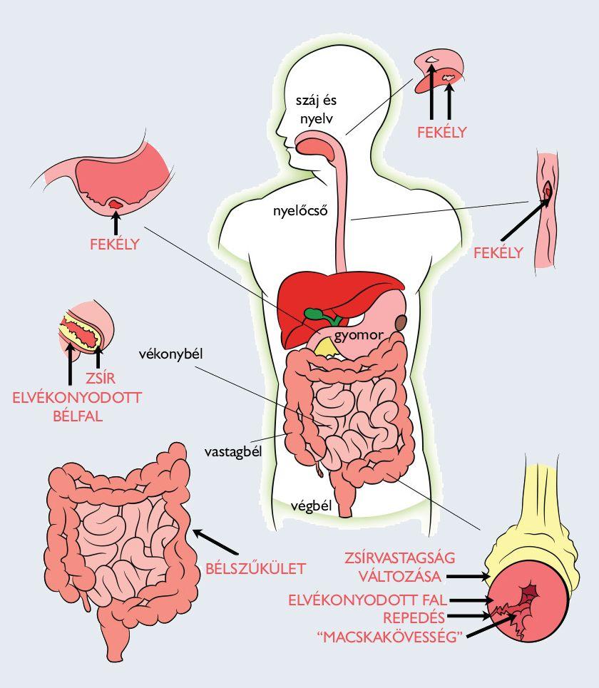 Paraziták kezelésére szolgáló készítmények az emberi testben
