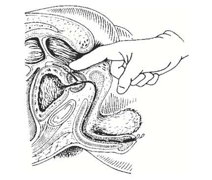 rektális rák patofiziológiája papilloma az uvulától