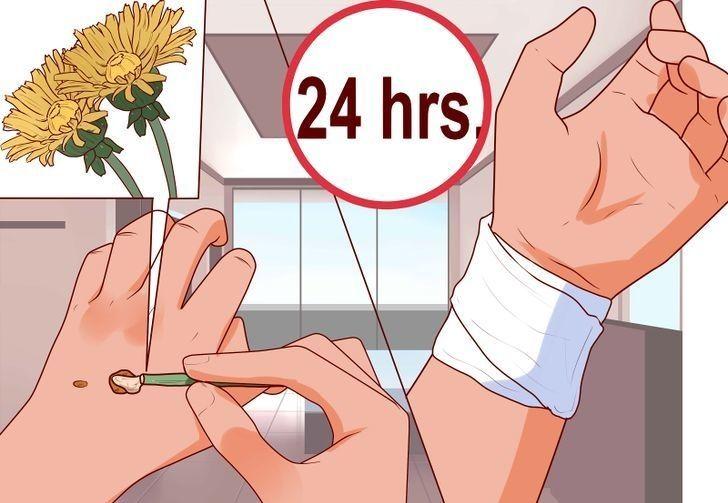 hpv papilloma száj hpv adalah vaksin