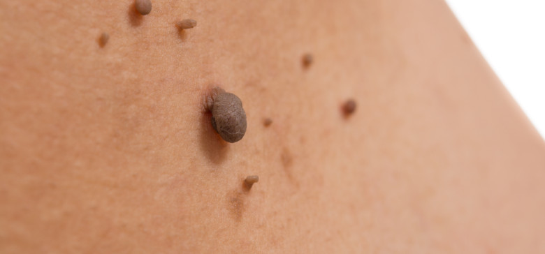 hasnyálmirigy endokrin rák férgek gyermek tablettákban